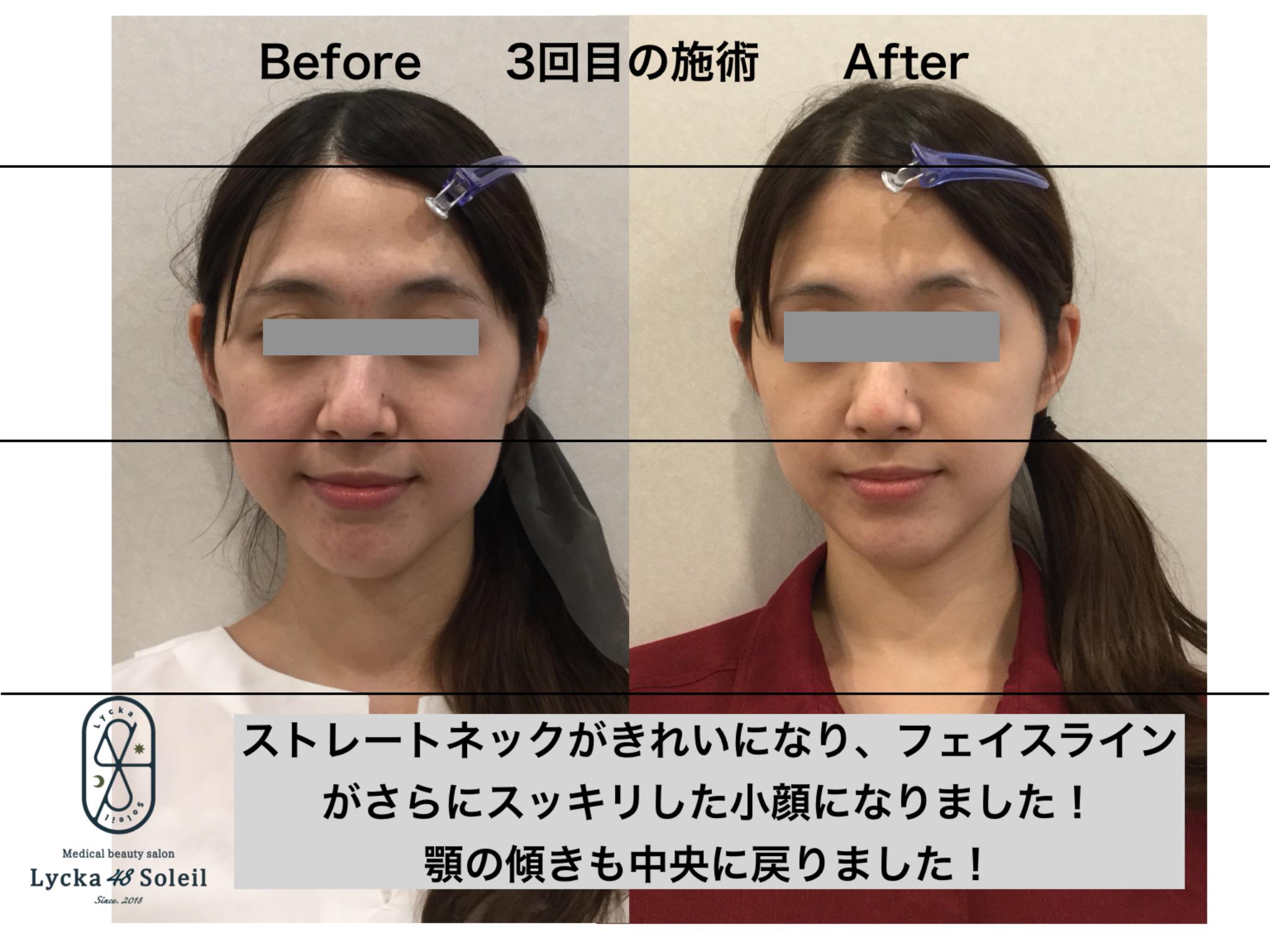 顔の印象が変わる小顔美調整技術!オッセオポスチュア FACE